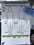 """""""Where Does Your Body Hurt During and After Logging?"""" poster"""